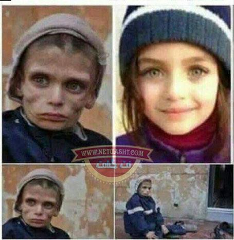 عکس تکان دهنده و دلخراشی از دختر زیبای سوری