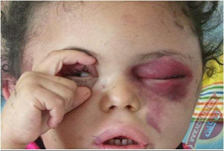 عکس دستان کوچک و چشمان بسته کودکی که نماد چشم های بسته جهان بر روی جنایات سعودی شد