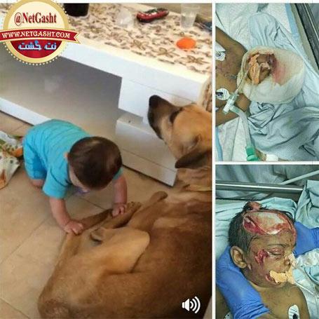 هشدار: بلایی که سگ  خانگی ، مار و حیوانات خاگی بر سر کودکان آوردند - عکس