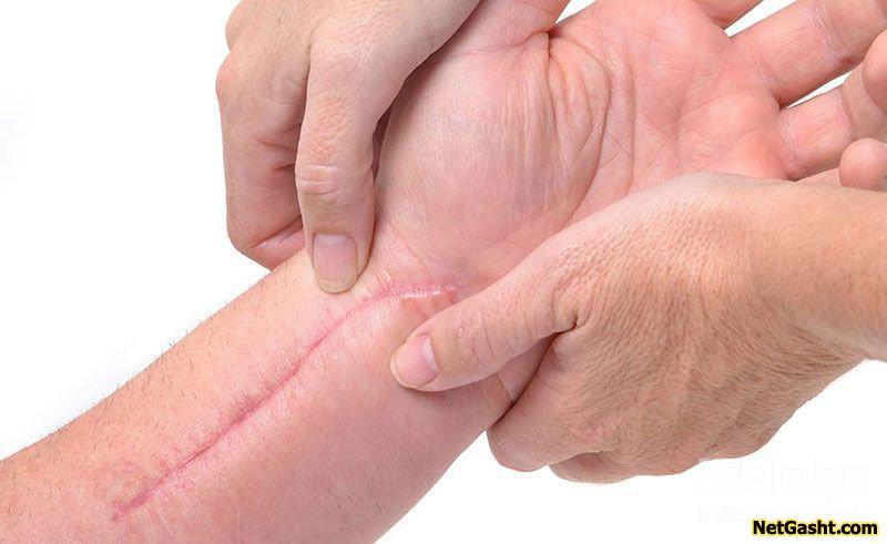 دلیل ماندن جای زخم بر روی پوست