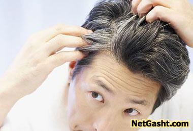 چرا با افزایش سن موها سفید میشود؟